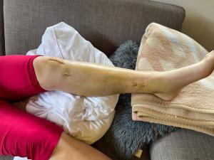 Beinbruch mit Nagel